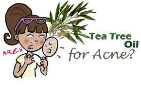 tea-tree-oil-acne
