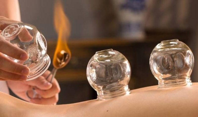 Cupping-therapy (2)